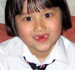 6 year old Marina with two front teeth missing